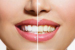 cosmetic dentistry - Berkeley dental care