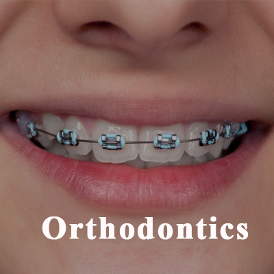 Orthodontics - Berkeley IL, Braces at Berkeley Dental Care