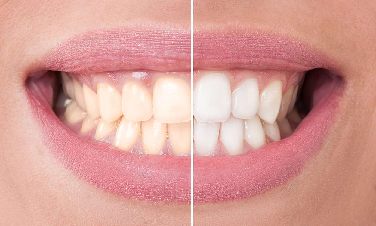 teeth whitening | Berkely IL | Berkeley Dental care