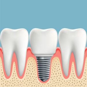 dental implant | Berkeley Dental Care | Berkeley IL